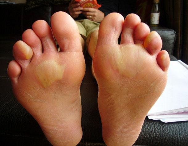 10Peaks-feet