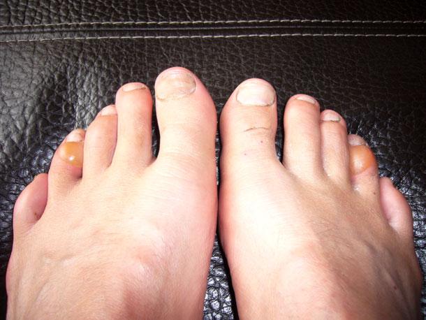 10Peaks-toes